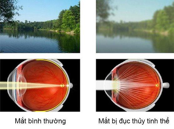 Tầm nhìn trở nên kém hơn khi mắt bị đục thủy tinh thể